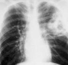 Radiografia de malformação adenomatoide cística tipo I (área esbranquiçada multicística no lado direito da imagem).